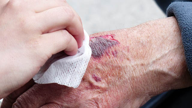 personal-injury-attorney-in-houston