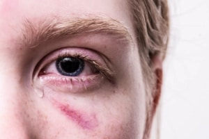 What is Considered a Personal Injury Case